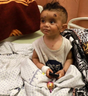 This war didn't even spared kids. The picture of a child receiving medical aid after the attack